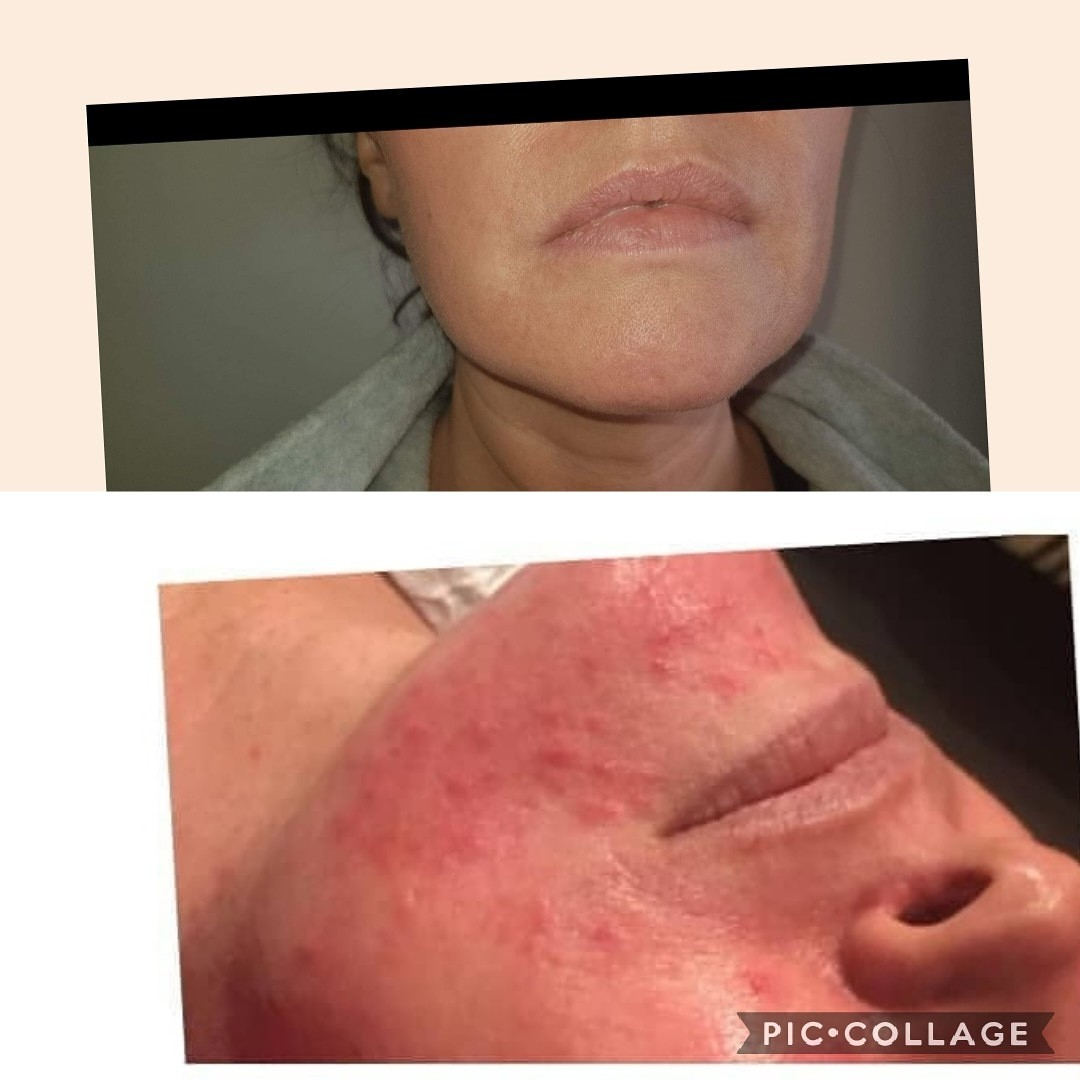 BB glow training before after