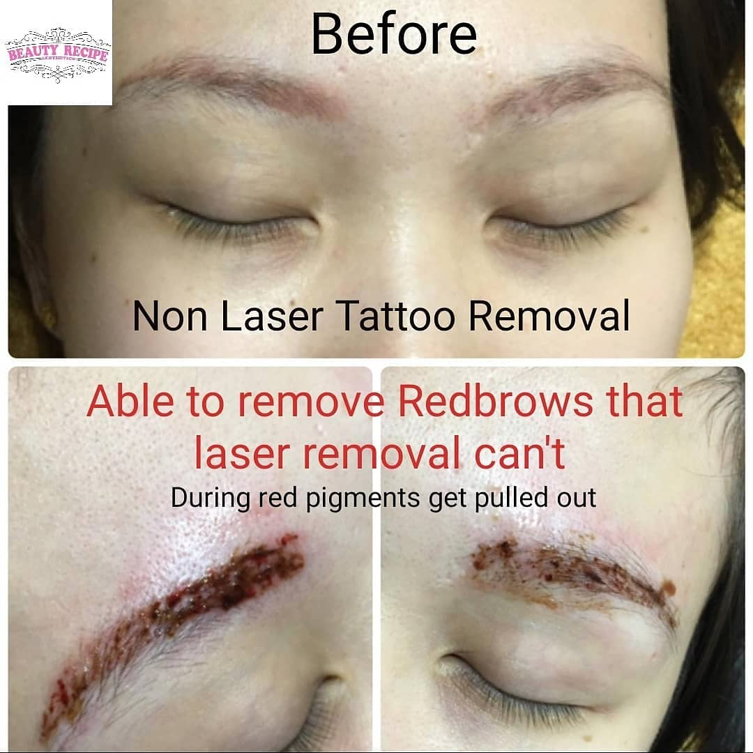 Non laser tattoo phiremoval singapore 3