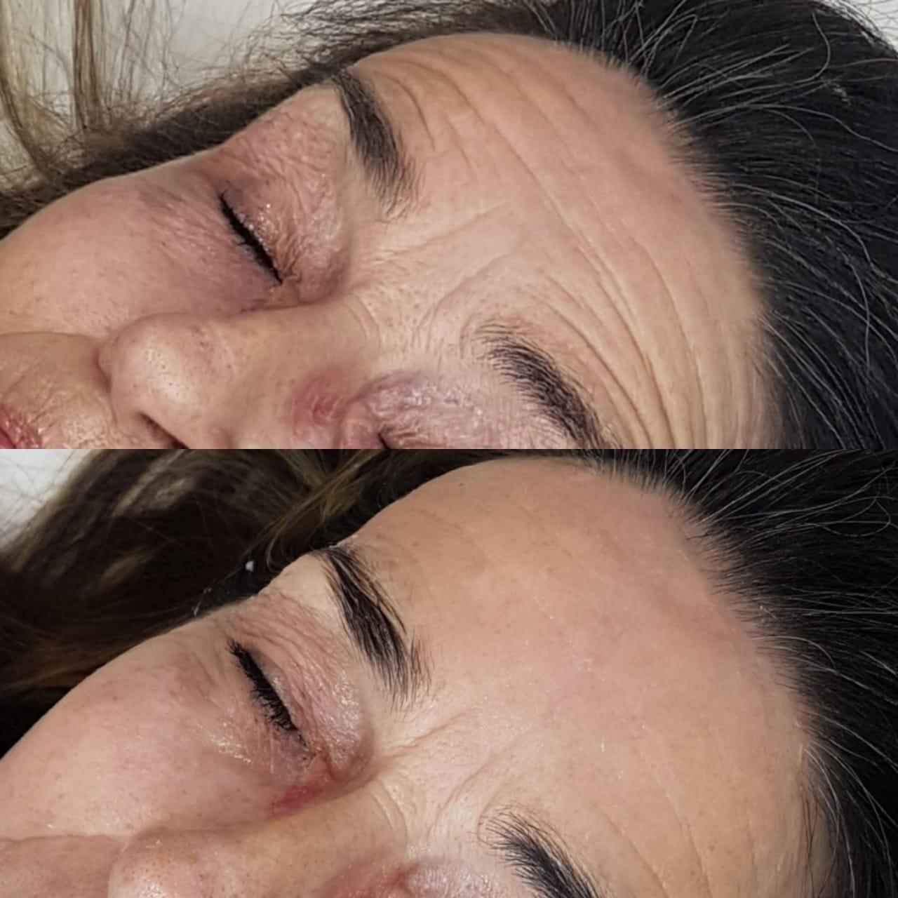 Needleless PDO Thread Lift Course - Beauty RecipeBeauty Recipe