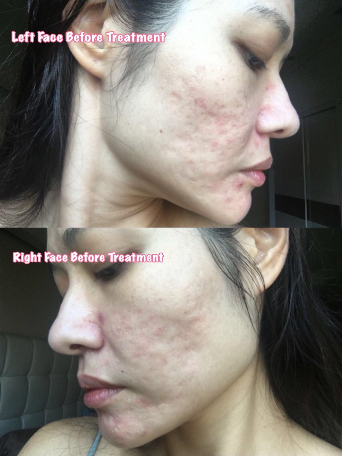 Acne Scar repair skin treatment photo