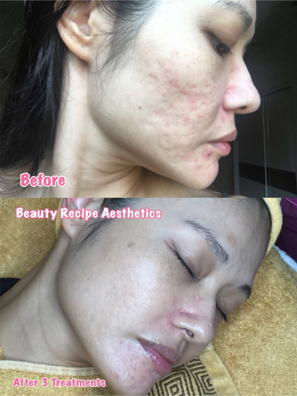 Acne Scar Removal Treatment Singapore