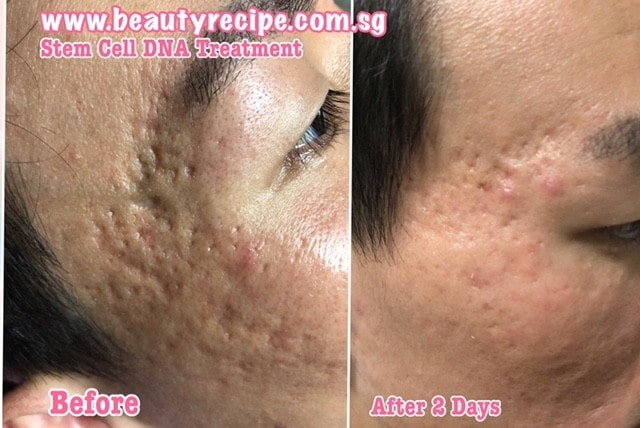 Stem cell skin treatment singapore