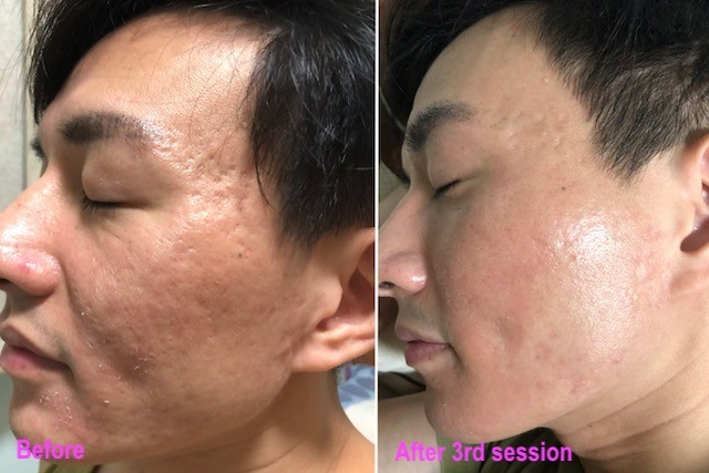 Stem Cell DNA Acne Scar Removal Treatment - Beauty