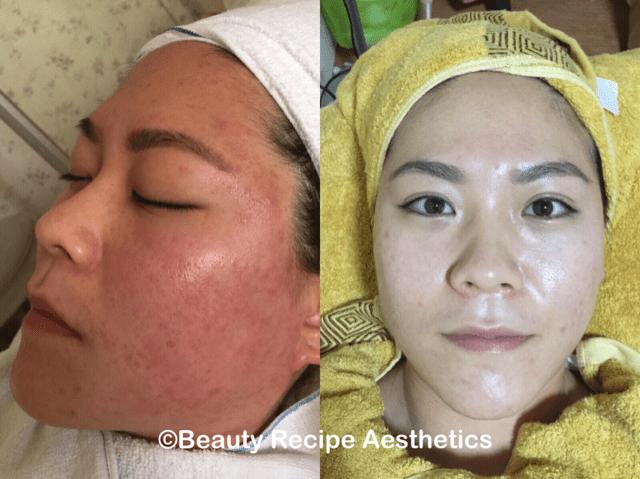 Acne Facial Singapore 2