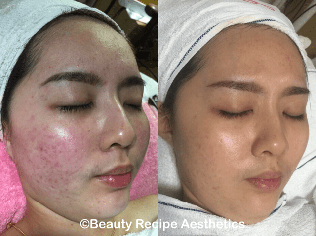 Seems facial and acne consider