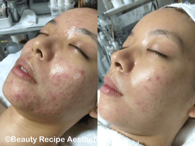 Acne Facial Singapore 1