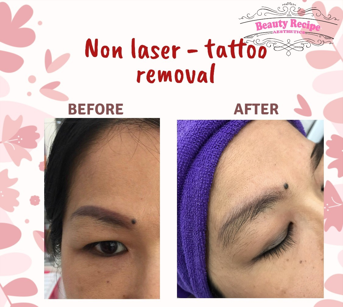Non laser tattoo removal 1