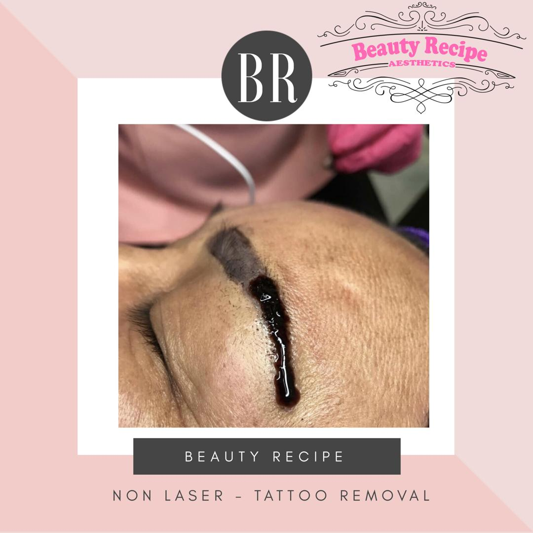 Non laser tattoo removal 5