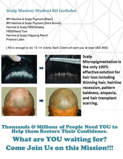 Scalp hairline micropigmenation 6