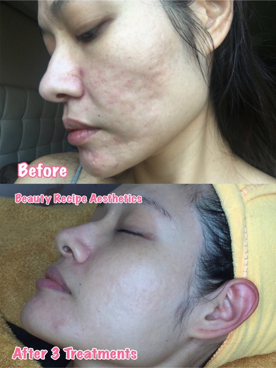 Acne Scar Removal Treatment Singapore 1