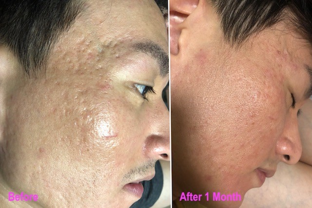acne scar stem cell treatment singapore