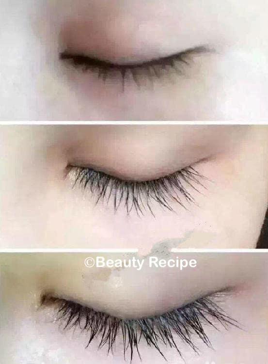 Eyelash-Growth-Stimulation-Treatment-Singapore-4