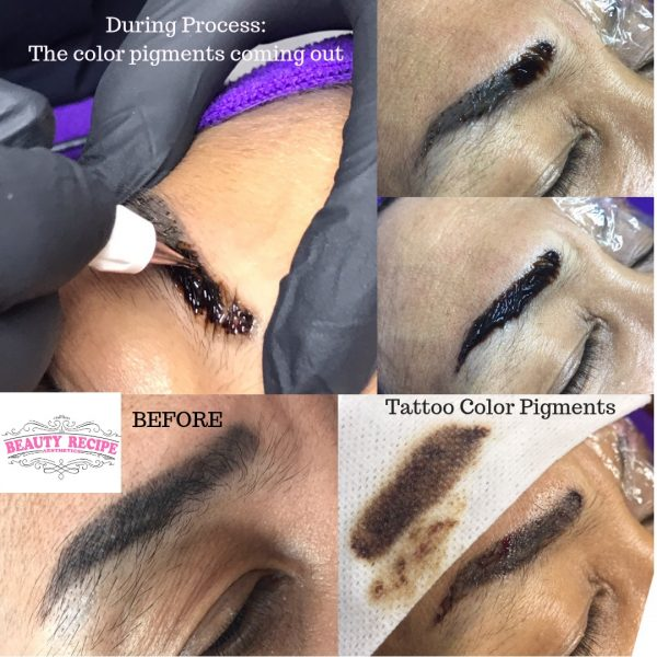 Non laser tattoo removal process