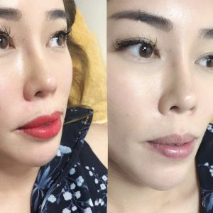 Non Swell Painless Lip Embroidery Tattoo Singapore Before After Photo Picture