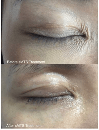 sMTS soluble Microneedling Therapy System 1