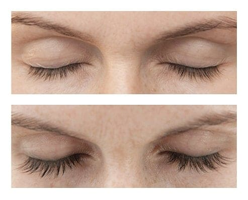 xlash eyelash growth enhancer serum singapore before after results