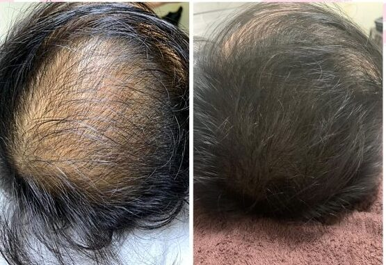 Scalp Micropigmentation Hairloss Treatment Singapore