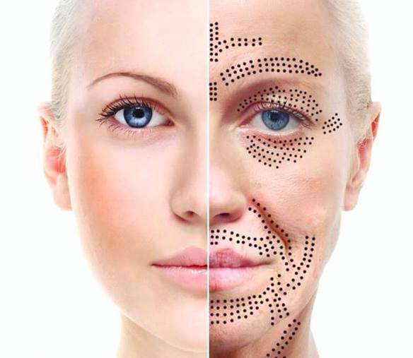 Plasma Fibroblast non surgical Face Lift singapore