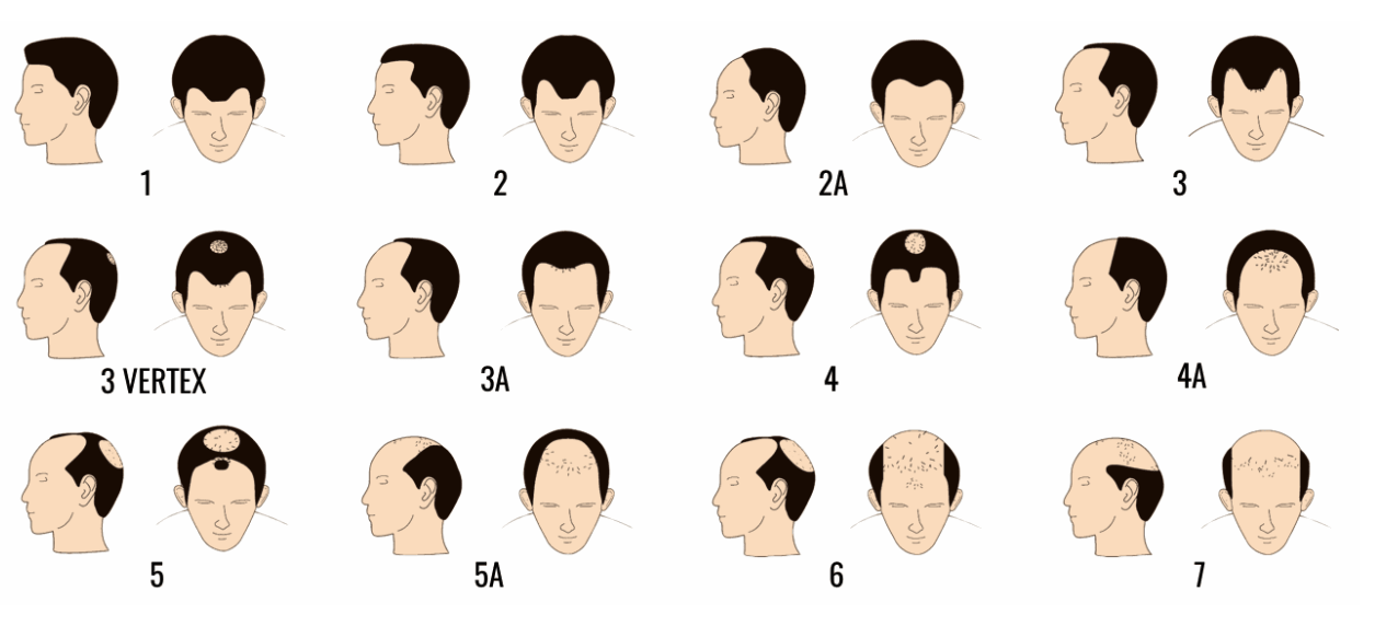 Male Hair loss problems table singapore