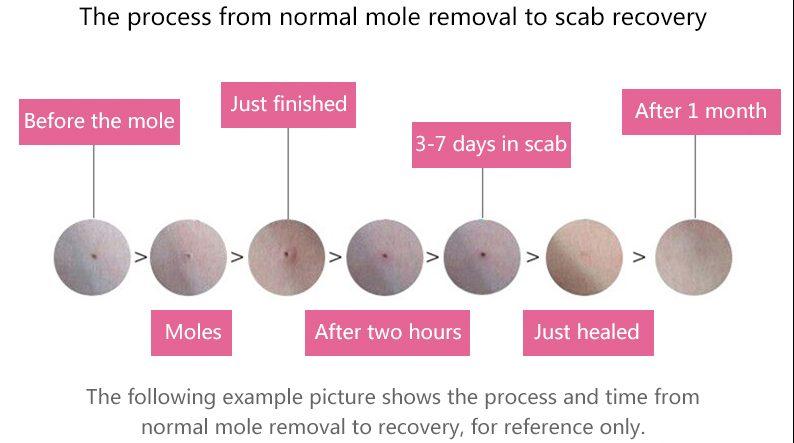 mole recovery process singapore