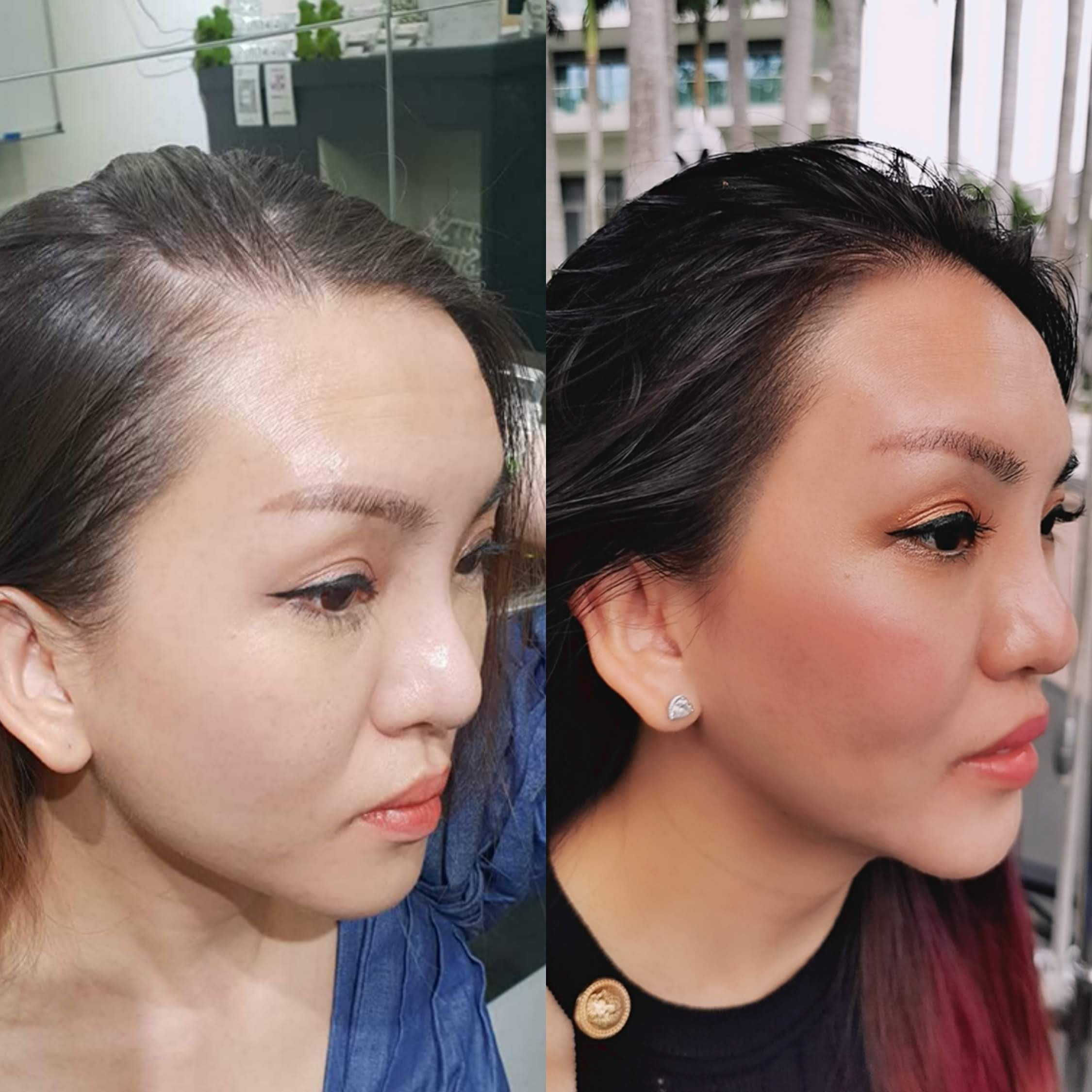 Hairline-embroidery-vs-microblading-tattoo micro pigmentation Singapore