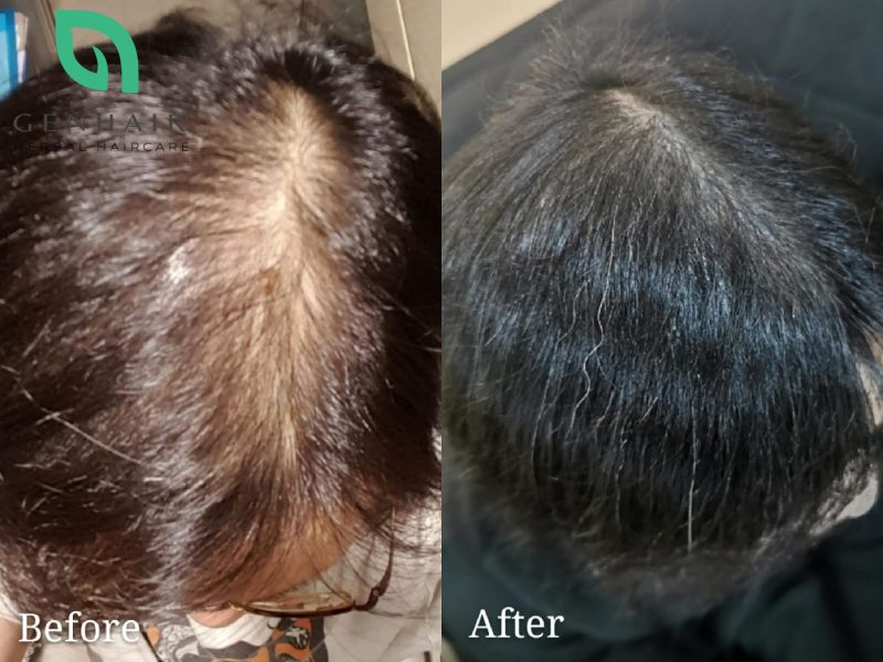 hair growth loss treatment products before after singapore