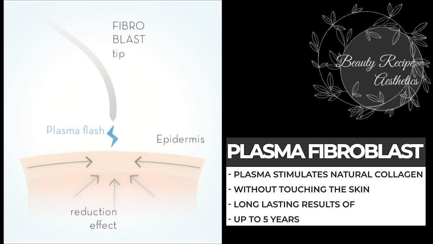 What is Plasma Fibroblast