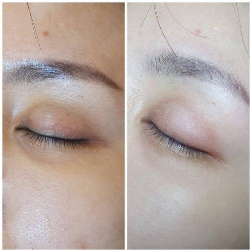 dark eye circle ring singapore removal
