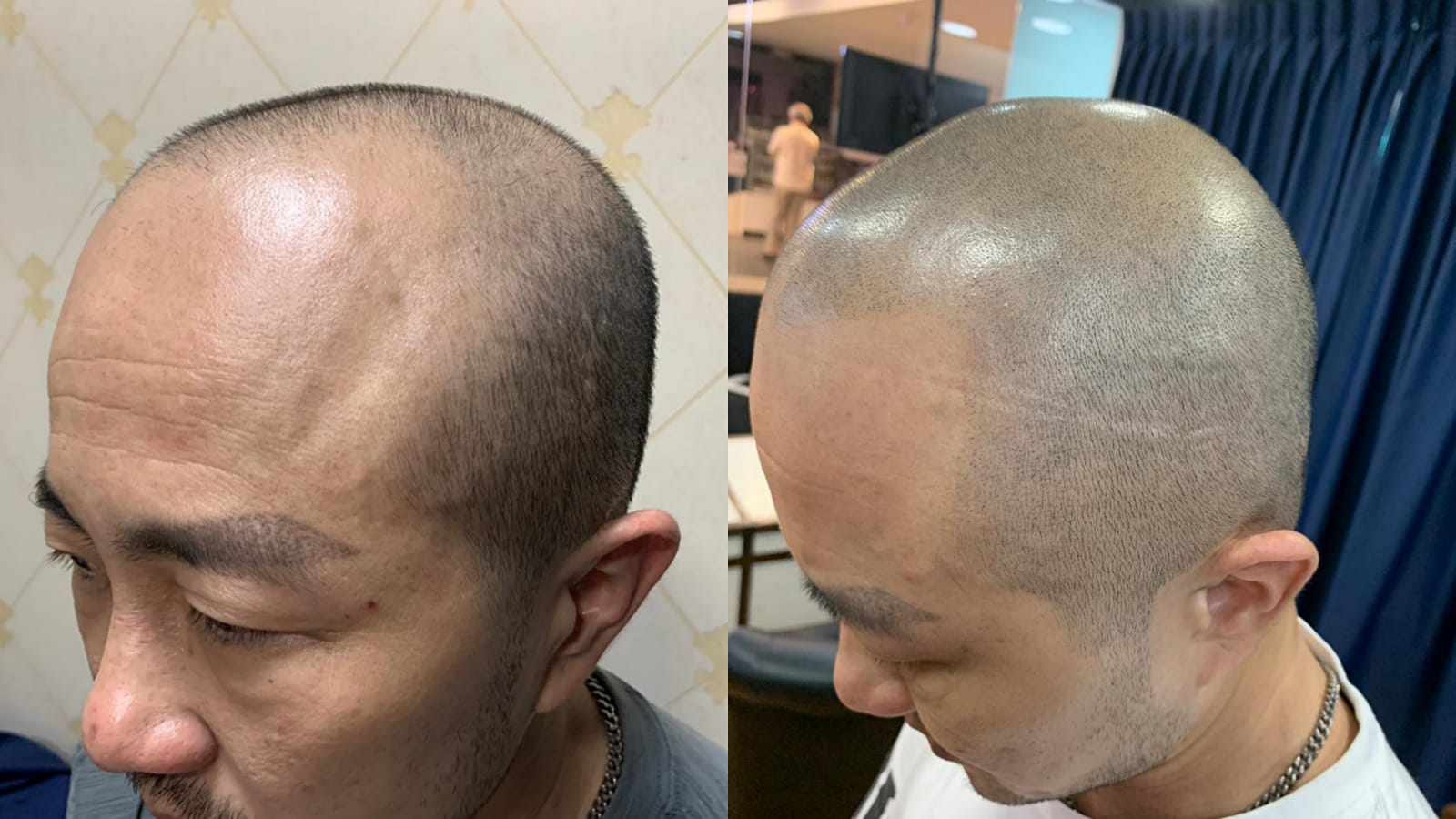 Best Top Scalp Micro Pigmentation Service Treatment Expert Singapore BEFORE AFTER
