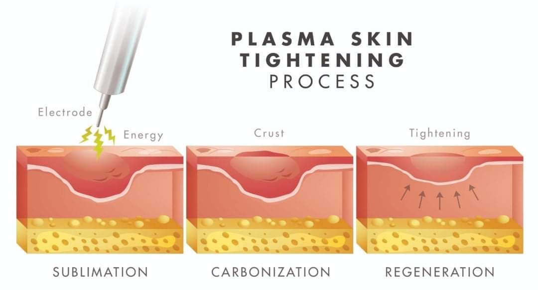 How Plasma Fibroblast works