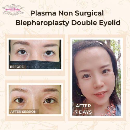 Plasma Non Surgical Blepharoplasty Double Eyelid Eyelift Singapore