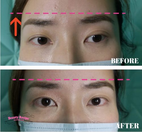 Plasma Brow Lift Singapore