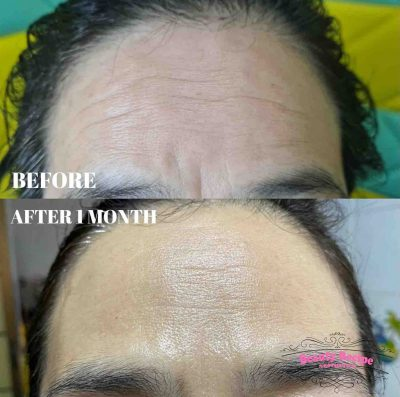Plasma Fibroblast Forehead Frown lines Singapore Treatment