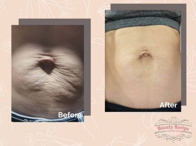 Plasma Fibroblast Tummy Lift Singapore