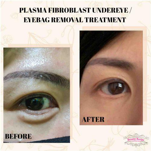 plasma non surgery eyebag removal singapore