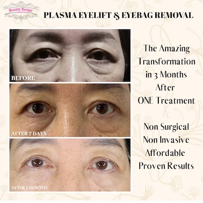 Best Eye Treatment Singapore