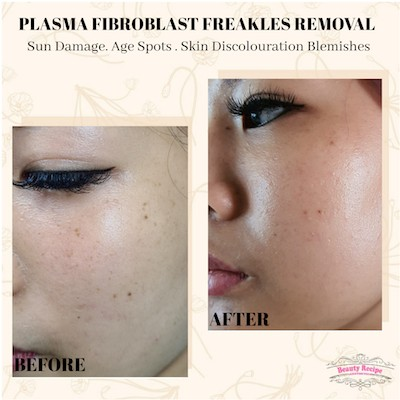 Plasma Fibroblast Pigmentation Age Sun Spot Removal Treatment