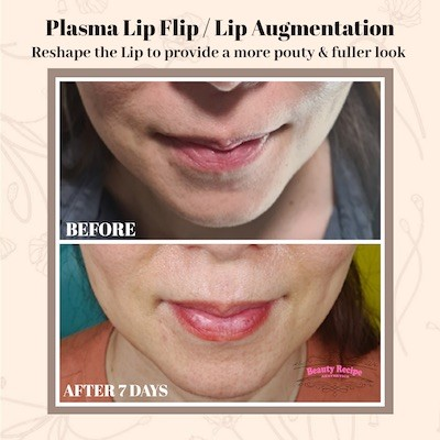 Plasma Fibroblast Lip Augmentation Flip Singapore