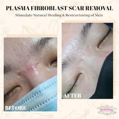 Plasma Acne Scar Removal Singapore