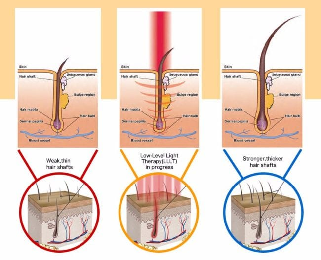 Low level laser therapy hair loss growth treatment singapore