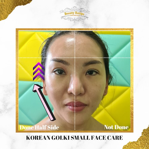 Korean Golki Small Face Slimming Care Massage Singapore 1