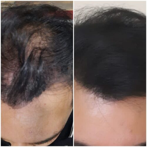 Low Level Laser Light Therapy hair growth Treatment singapore