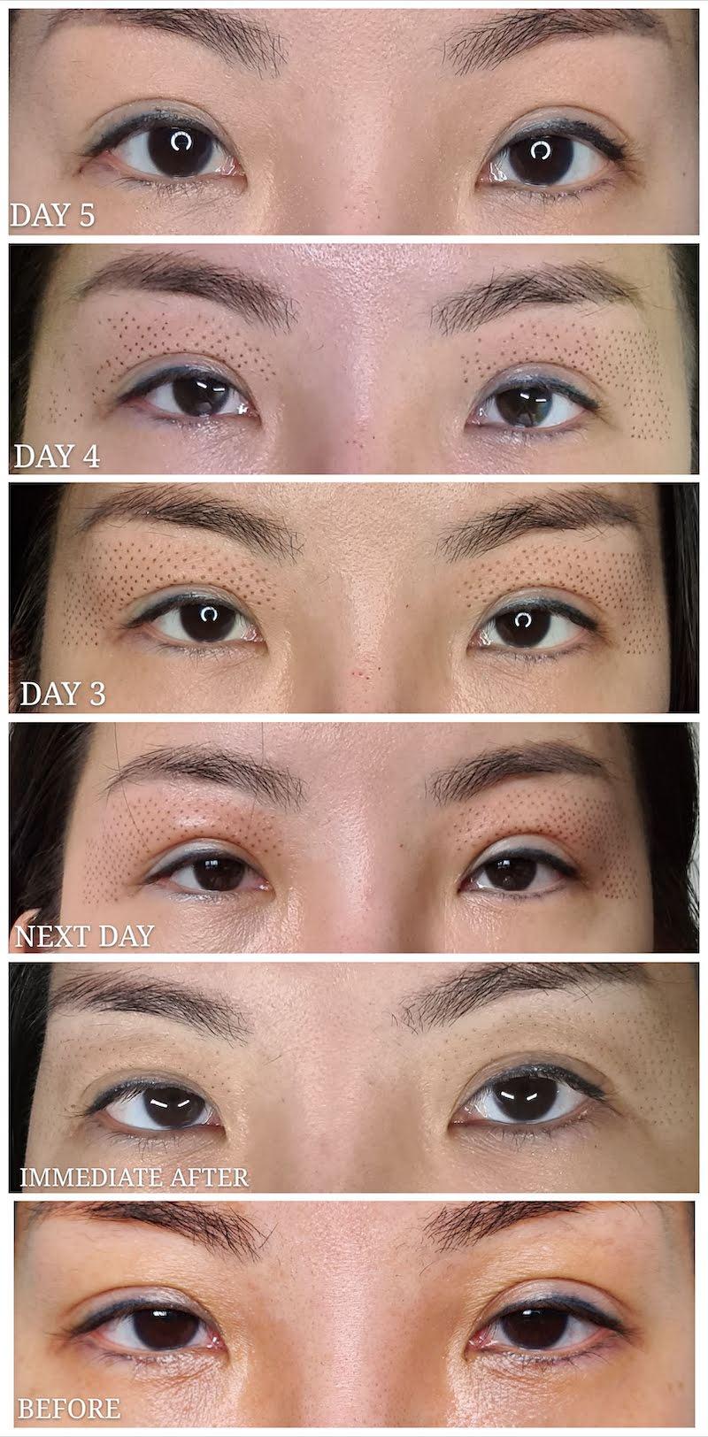 Plasma Eyelift Recovery Process Singapore