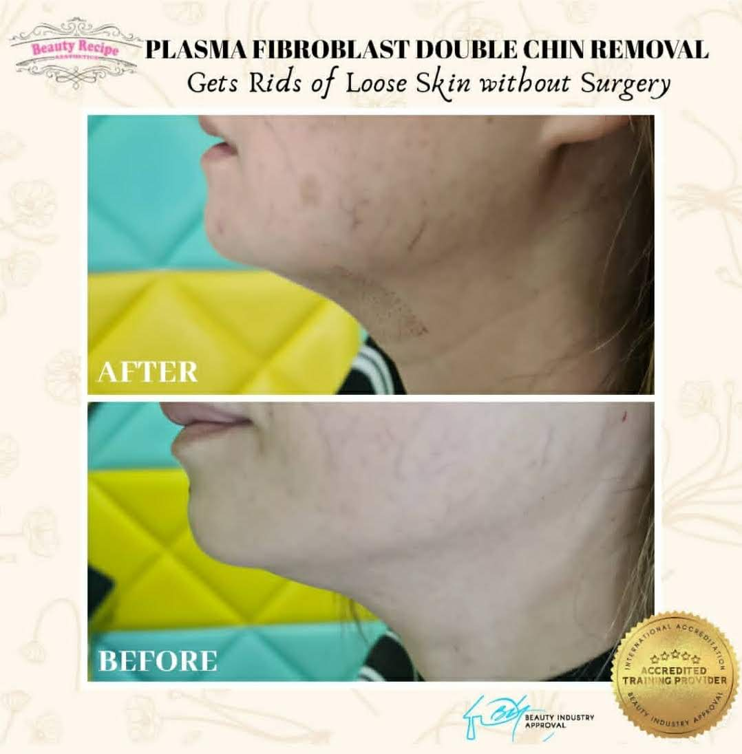 Plasma Neck Lift Tightening Singapore