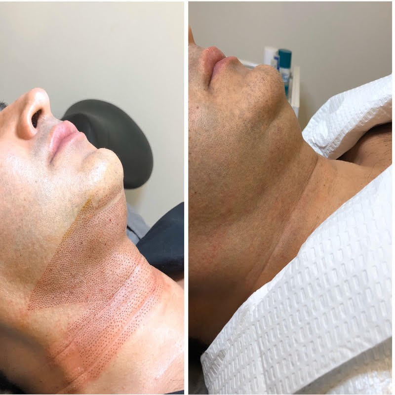 Double chin removal singapore