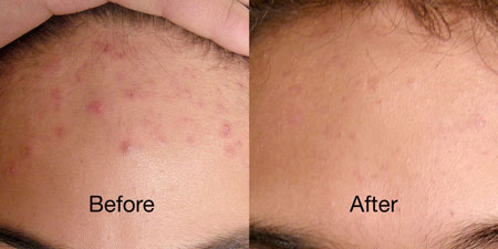 Red light therapy acne treatment singapore