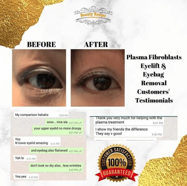 eyelift eyebag removal singapore testimonial
