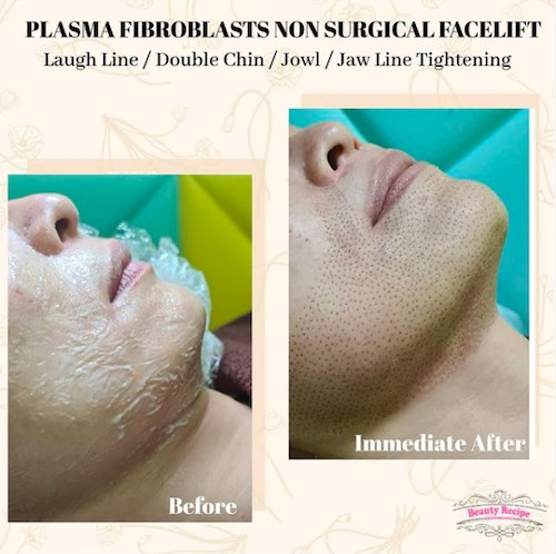 jowl jaw line tightening double chin removal singapore
